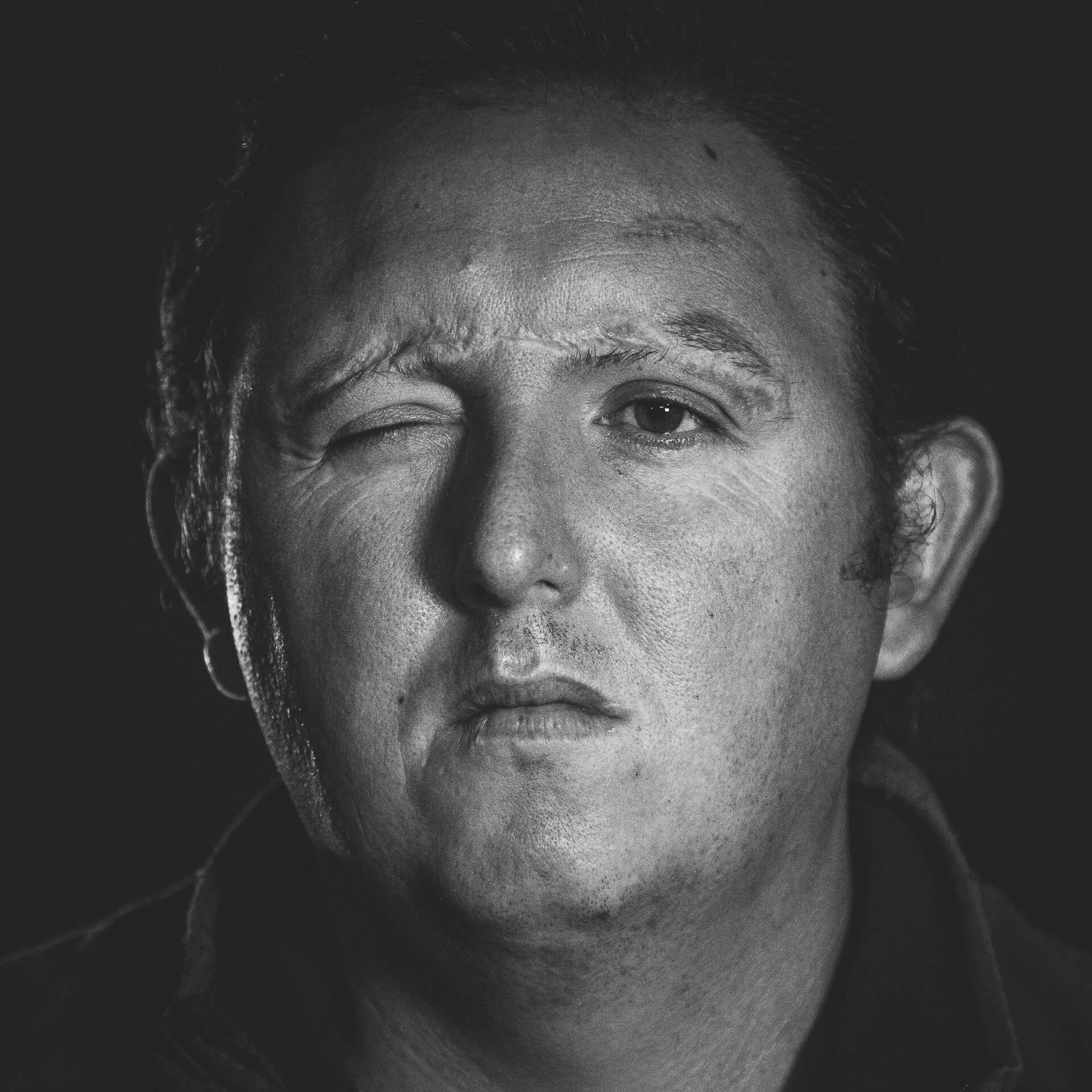 This image shows the scarred face of a Army Veteran. He was injured in a rocket attack whilst deployed in Afghanistan. The attack left him blind in his right eye, and with very limited sight in his left. It is a Black & White image.